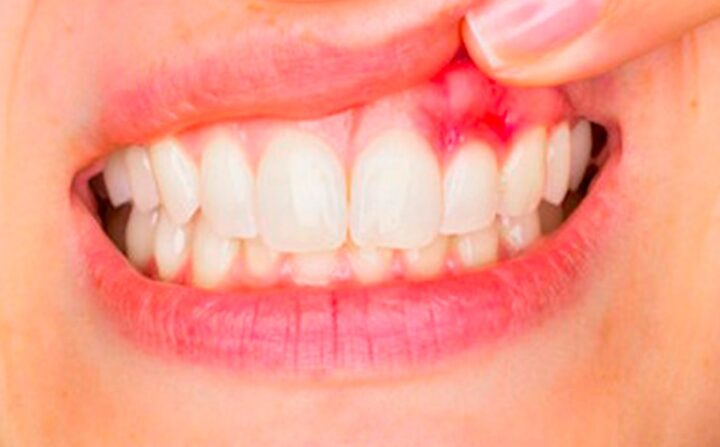 Treatment for gum disease in Chicago