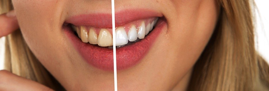 Before & After Teeth Whitening Results