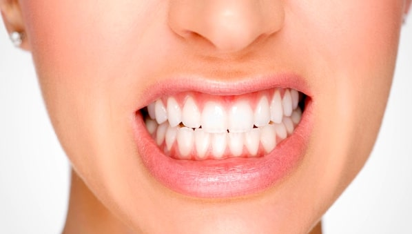 Oral Health Hazards of Teeth Grinding & Jaw Clenching - Palos Park IL Dentist