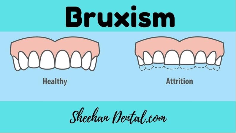 Sheehan Dental in Palos Park IL - Bruxism & Sleep Disorders