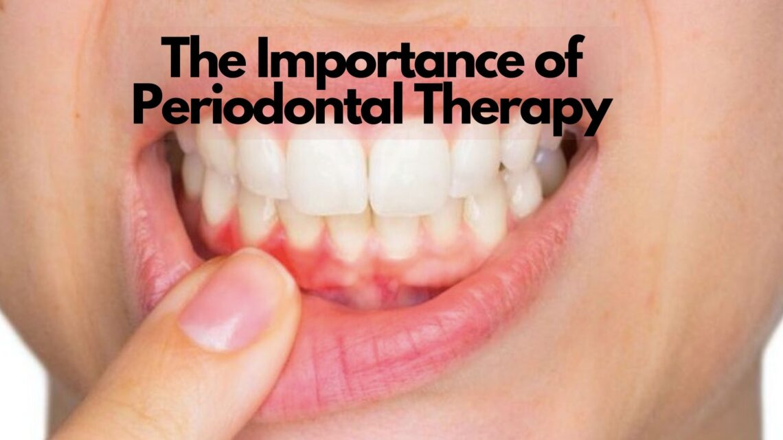 Periodontal Therapy-Prevent-Gum-Disease-Palos-Park-IL-Dentist