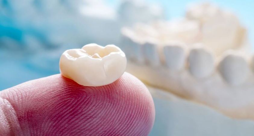 Palos Park IL Dental Crown Services for Damaged or Decayed Tooth