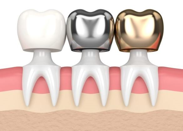 Dental Crowns in Palos Park at Sheehan Dental to Improve the Appearance of Your Teeth