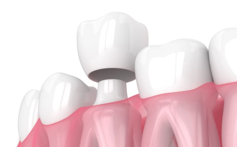 Dental Crown Specialist in Palos Park IL