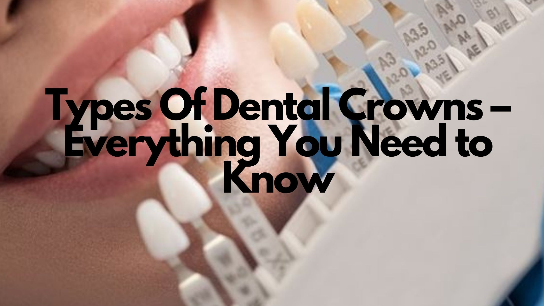 Discover Why Dental Crowns May Be Your Dental Restoration Solution