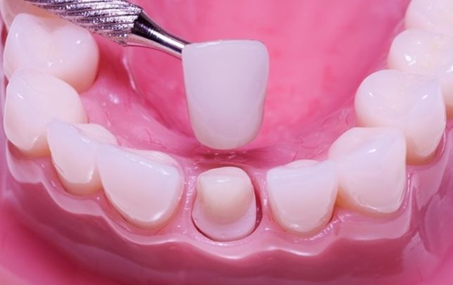Porcelain Dental Crowns Dentistry in Palos Park IL